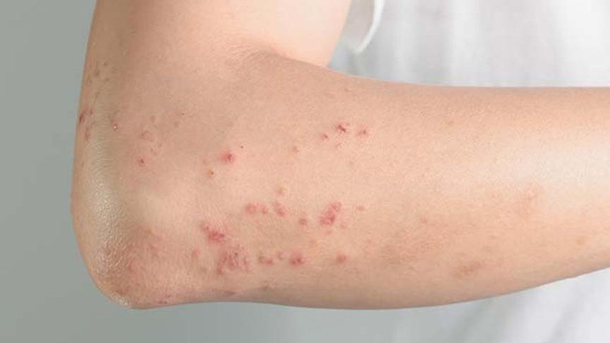 Zona hastalığı (Gece yanığı) nedir? Zonanın nedenleri, belirtileri ve zona tedavisi