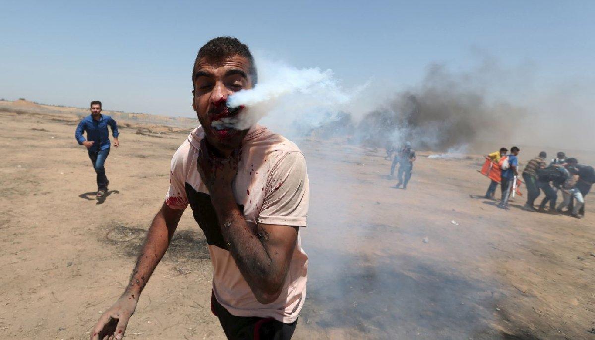 Yüzüne gaz kapsülü saplanan bir gösterici kameraların önünde yaşam mücadelesi verdi.