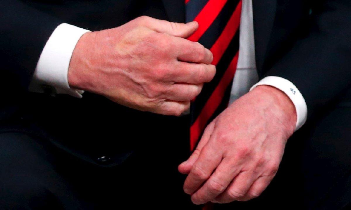 Trump'ın sağ elinde Macron'un parmak izi kaldı.