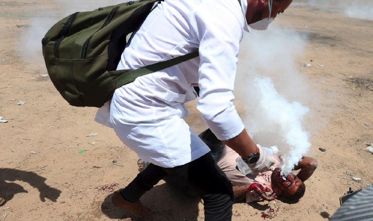 Yüzüne kapsül saplanan gösterici yere yığıldı ve biber gazı ağzından çıkarken Reuters kameraları tarafından görüntülendi.