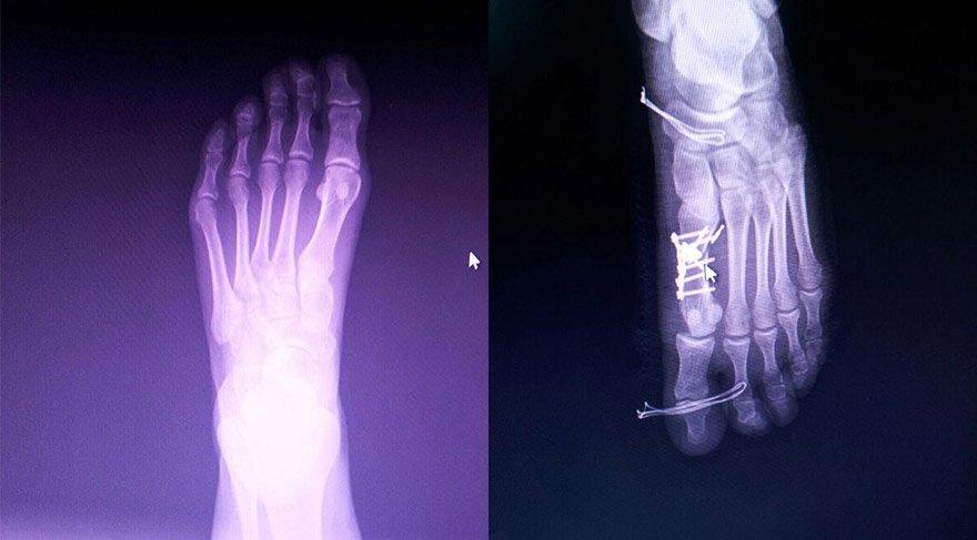 doktor-yanlis-parmagi-ameliyat-etti-aa-1