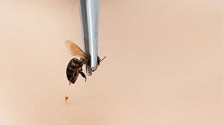 Arı sokması belirtileri neler? Arı sokması alerjisi nasıl anlaşılır? İşte tedavi önerileri...