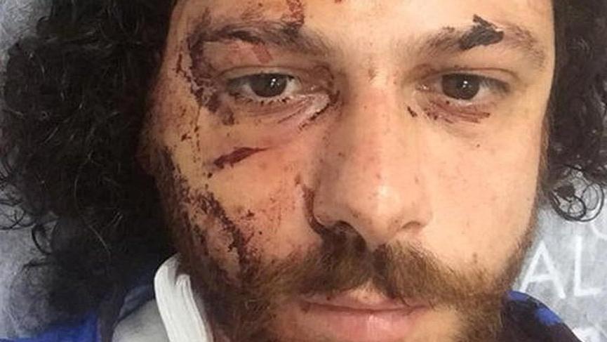 Oyuncu Oral Özer'in yaralandığı bara silahlı saldırı olayının görüntüleri ortaya çıktı