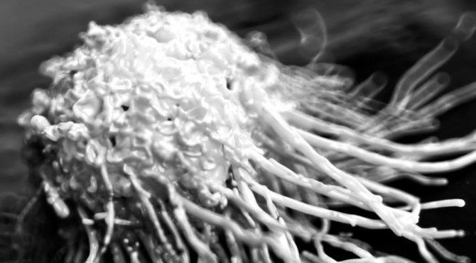 Kanser hücrelerini 'aç bırakmanın' yolu bulundu