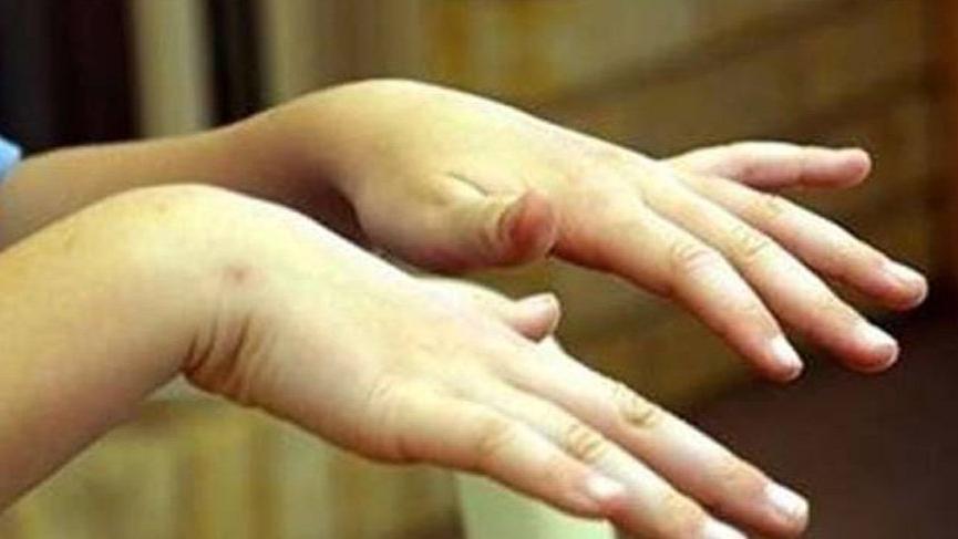 Titreme (Tremor) hastalığı nedir? Titremenin nedenleri, belirtileri ve tedavisi