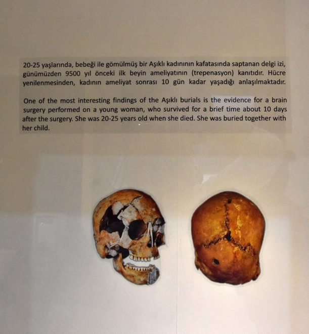 10-bin-yil-once-beyin-ameliyati2