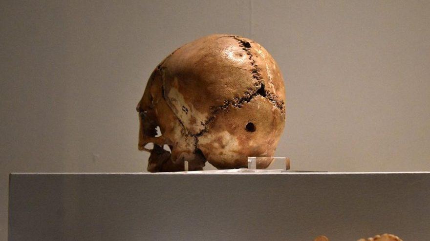 10 bin yıl önce inanması zor kafatası ameliyatı!