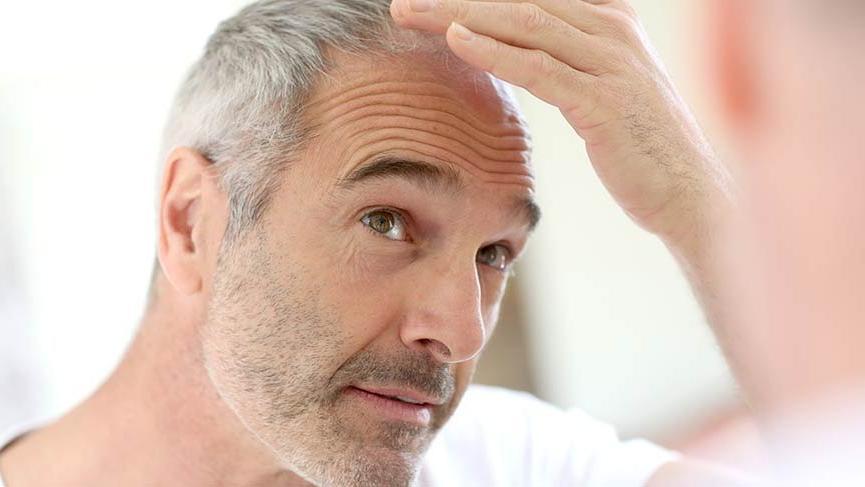 Saçkıran (Alopesi areata) nedir? Saçkıran hastalığının nedenleri, belirtileri ve tedavisi...