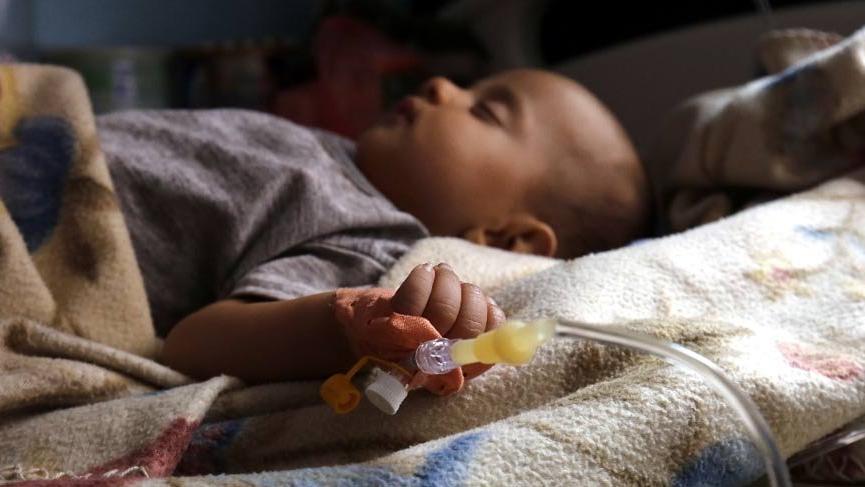 BM'den Yemen'de yeni kolera salgını uyarısı!