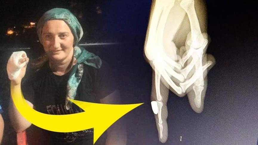 Rize'de maganda kurşunu kadının parmağına isabet etti!