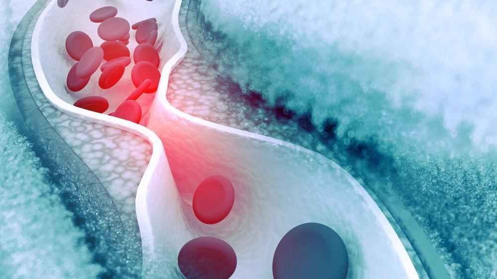 Ege Üniversitesi 'kolesterol düşüren' sistem geliştirdi