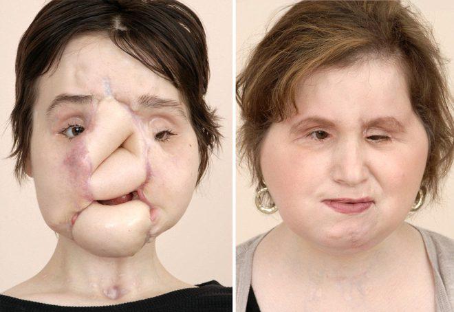 Katie'nin operasyondan önceki ve sonraki hali.