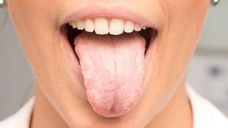 Dil büyümesi nedir? Dil büyümesi nedenleri, belirtileri ve tedavisi…