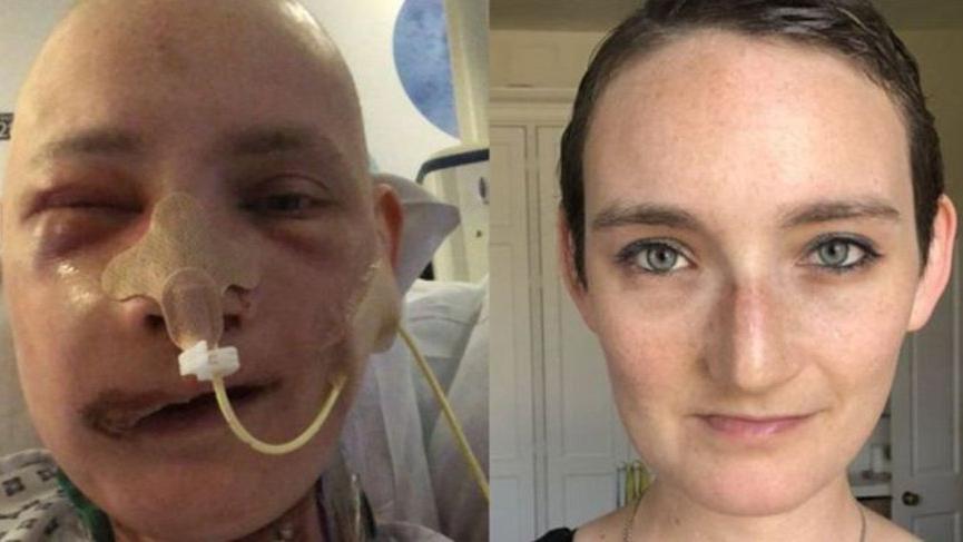 """'Yüz rekonstrüksiyon ameliyatı hayatımı değiştirdi"""""""