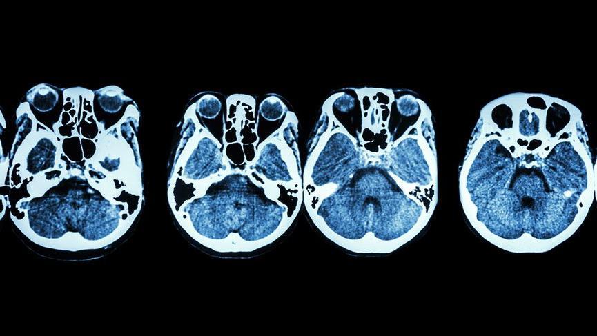 Kafa tabanı tümörleri nasıl belirti veriyor?