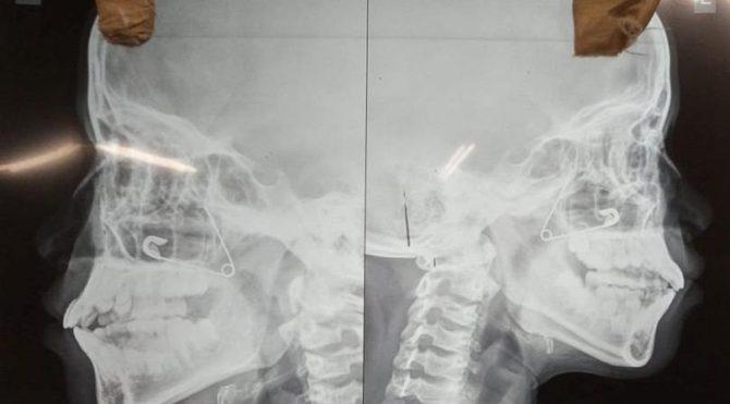 Korkunç bir olay… Çengelli iğneyle burnunu kaşıdı, hastanelik oldu