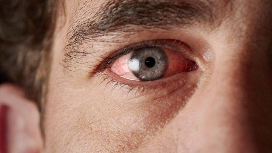 Göz kanlanması neden olur?