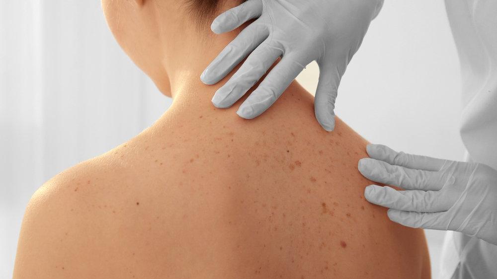 Cilt kanseri nedir? Cilt kanserinin nedenleri, belirtileri ve tedavisi...