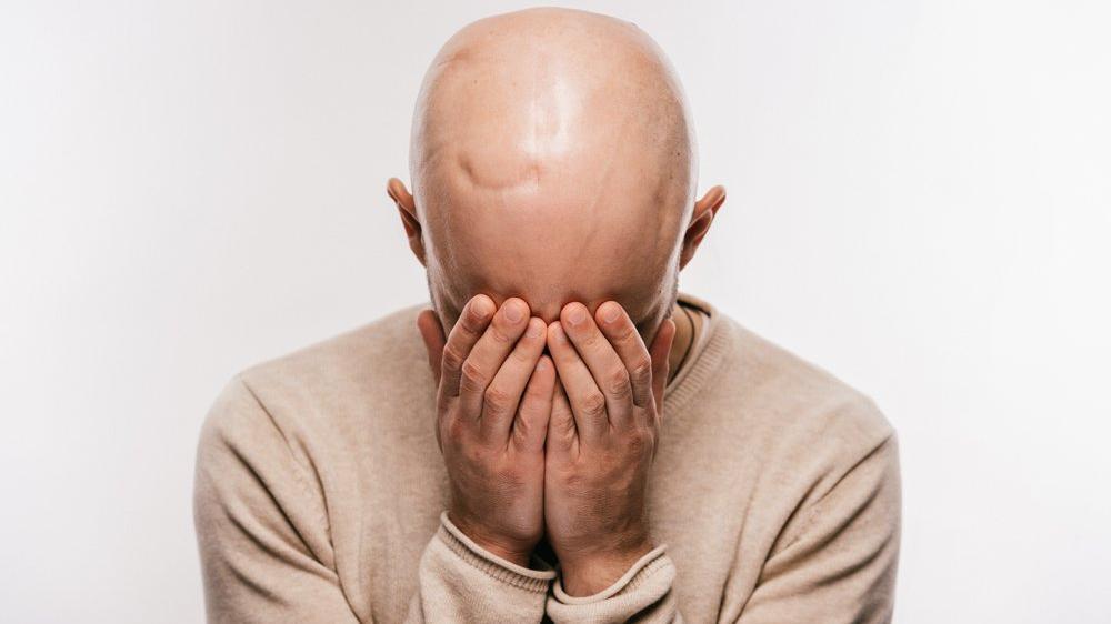 Kellik (saç dökülmesi) tedavisi...