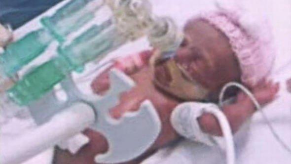 26 haftalık dünyaya gelen prematüre bebek...