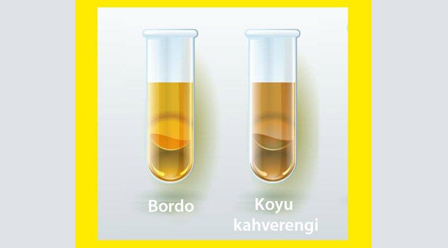 bordo-ve-kahverengi-idrar
