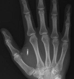 Mikroçip iki parmak arasındaki yere yerleştiriliyor.