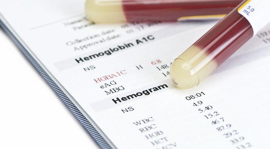 hemogram-nedir