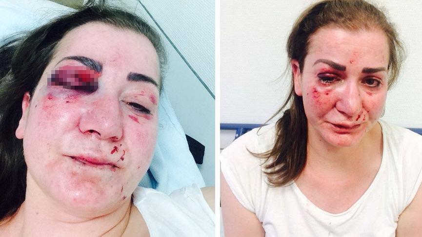 Türk kadına Almanya'da feci saldırı!