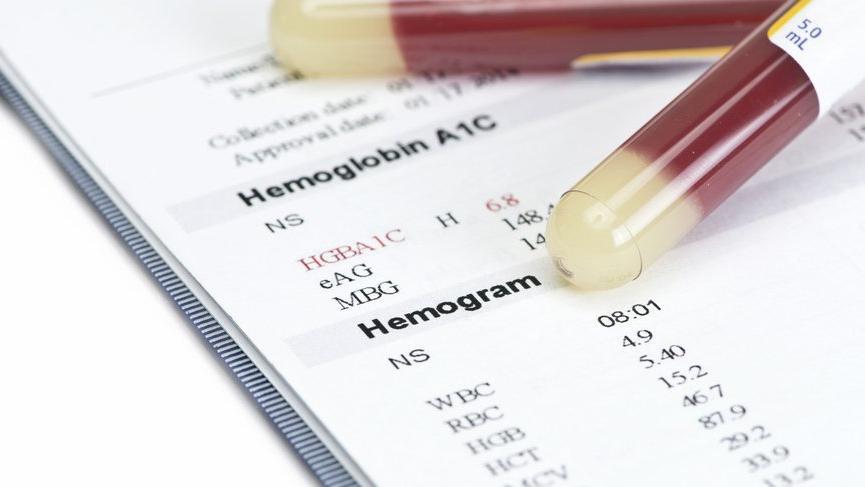 Tam Kan Sayımı CBC Nedir Tam Kan Sayımında Nelere Bakılır