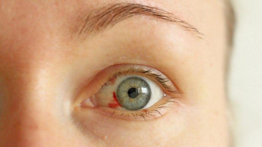 Göz kanlanması nedir? Göz kanlanmasının nedenleri ve tedavisi…
