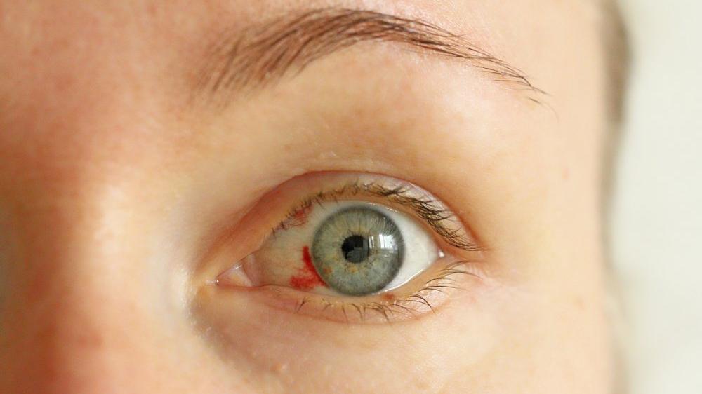 Göz kanlanması nedir? Göz kanlanmasının nedenleri ve tedavisi...
