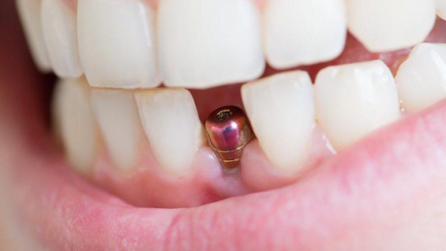 Diyabet hastaları implant tedavisi yaptırabilir mi?