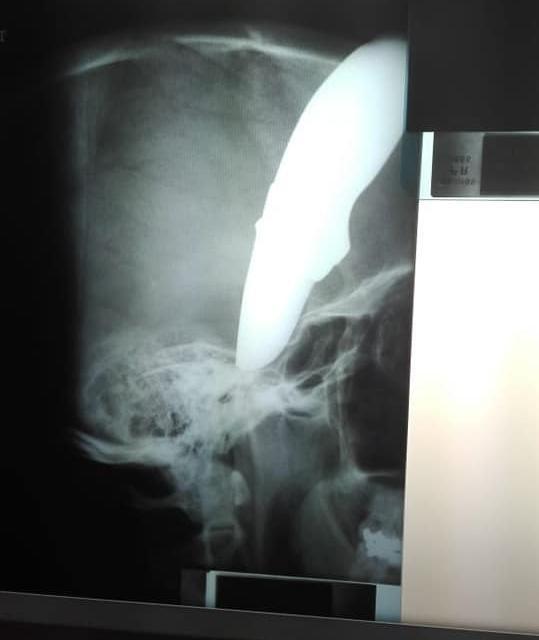 Wayne'in röntgen sonucu, genç adamın yaşama kılpayı tutunduğunu gözler önüne seriyor.