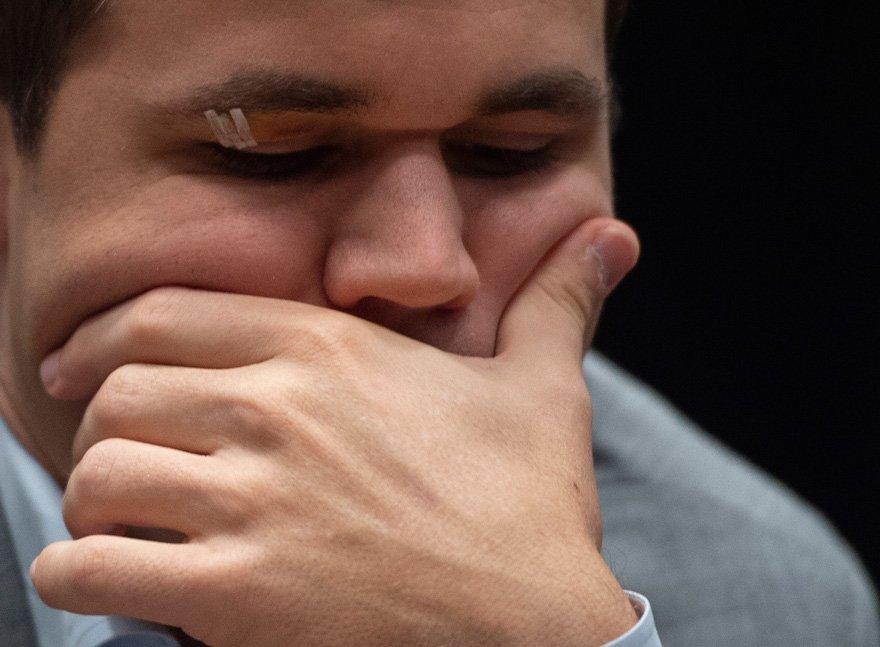 Carlsen, dinlendiği gün bir kaza yaşamış ve gözü morarmıştı.