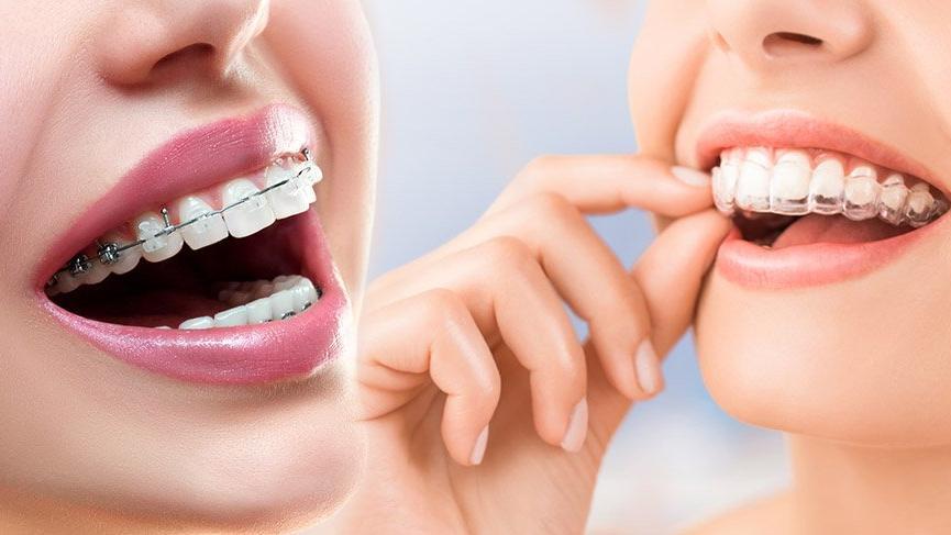 Şeffaf plak mı diş teli mi?