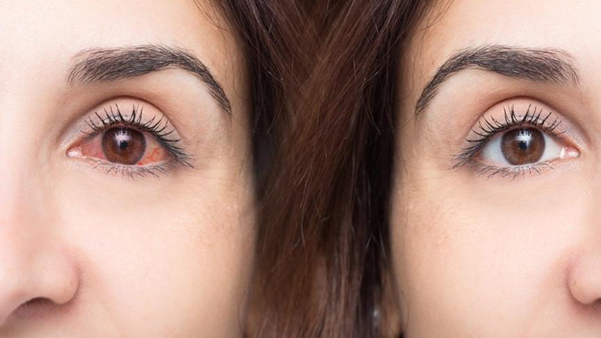 Göz kaşıntısı neden olur? Göz kaşıntısı nedenleri ve tedavisi...
