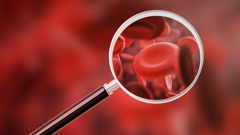 İdrarda kan ne anlama gelir? İdrarda eritrosit yüksekliği nedenleri ve belirtileri...