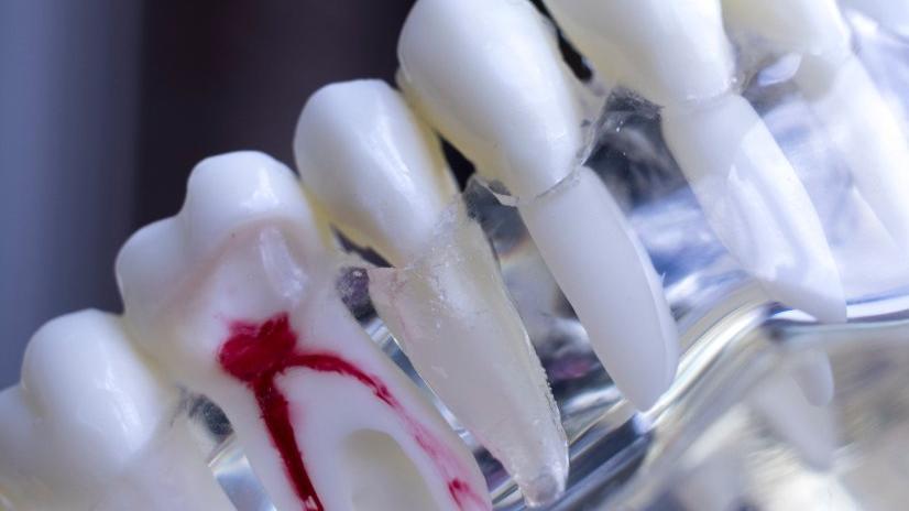 Diş eti kanaması: Diş eti kanamasının nedenleri ve tedavisi...