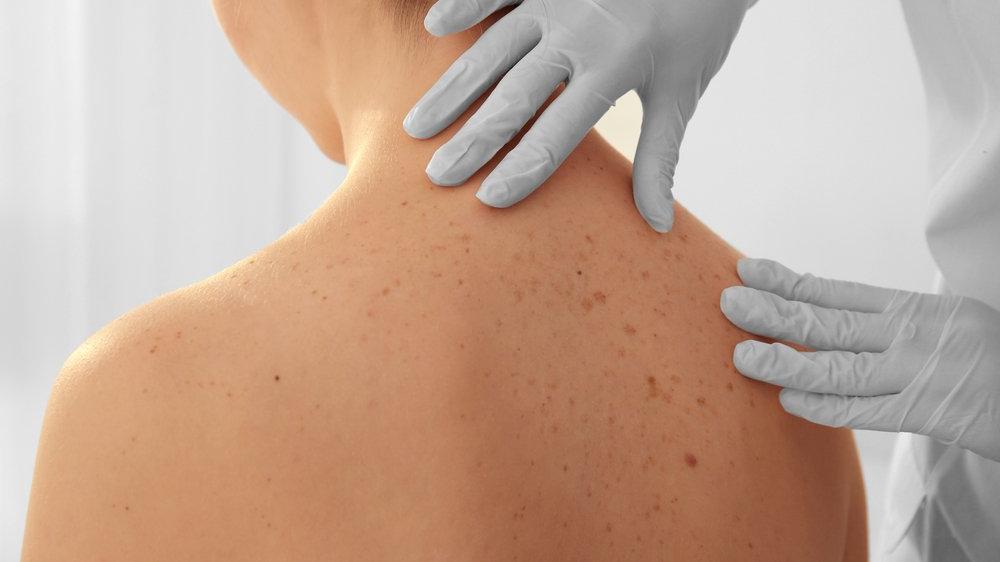 Deri iltihabı (Dermatit) nedir? Deri iltihabı nedenleri, belirtileri ve tedavisi...