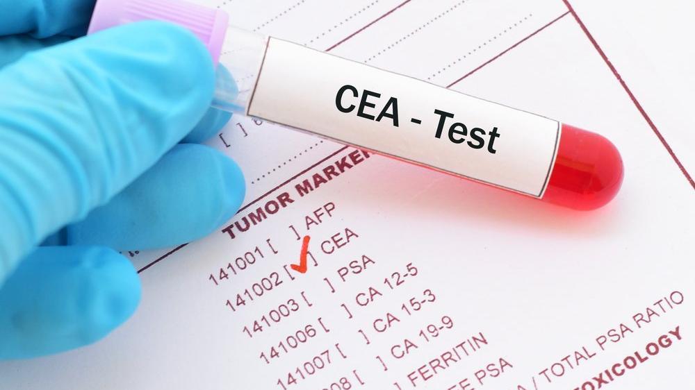 CEA yüksekliği ne anlama gelir? CEA yüksekliğinin nedenleri...