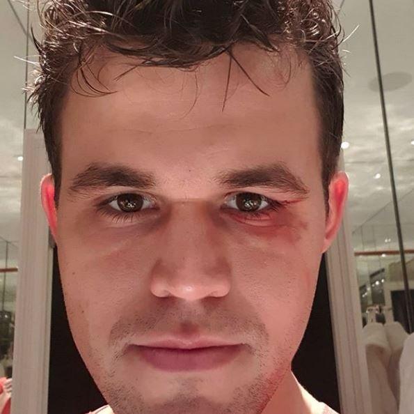 """Carlsen'in doktoru, """"Eğer görüşünde sıkıntı olsaydı maça çıkamazdı ama dikiş bile atmadık. Şu an iyi"""" dedi."""