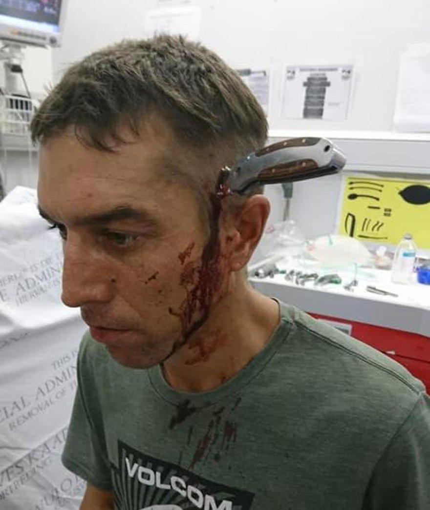Shaun Wayne'in sağlık durumunun iyi olduğu açıklandı.