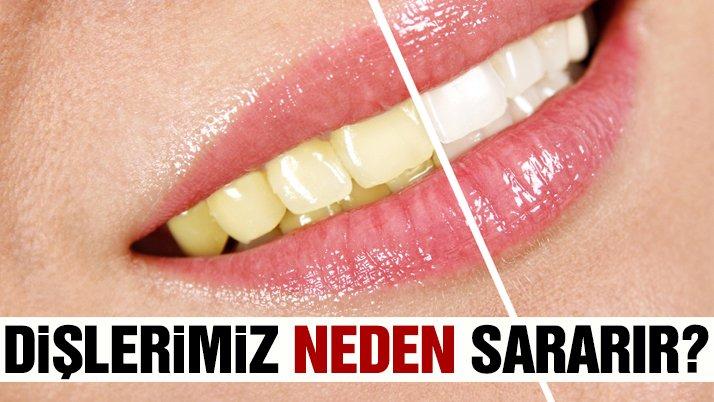 Dişlerimizin sararmasının nedeni nedir?