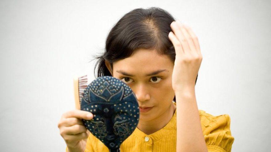 Saçlarımız neden dökülür? Sebepleri nelerdir?