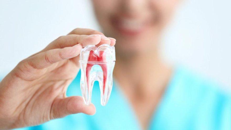 Diş çürüğü nedir? Diş çürüğü belirtileri ve tedavisi…