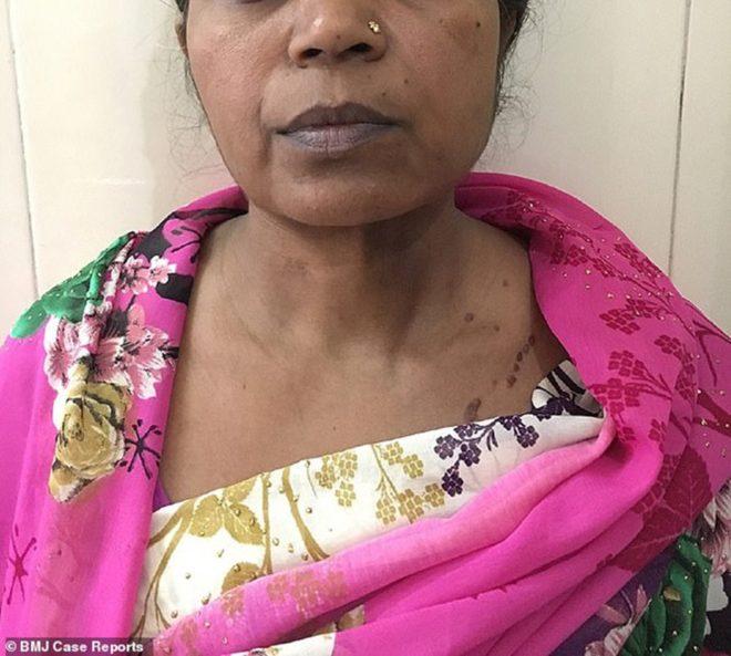 Kadın ameliyattan sonra sağlığına kavuştu.