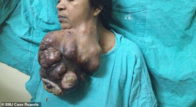 tumor-hindistan-bmj4