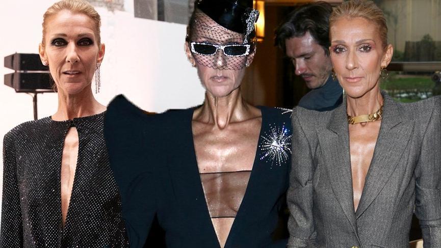 Celin Dion'un zayıf görüntüsü 'Bulimia' iddiasını gündeme getirdi