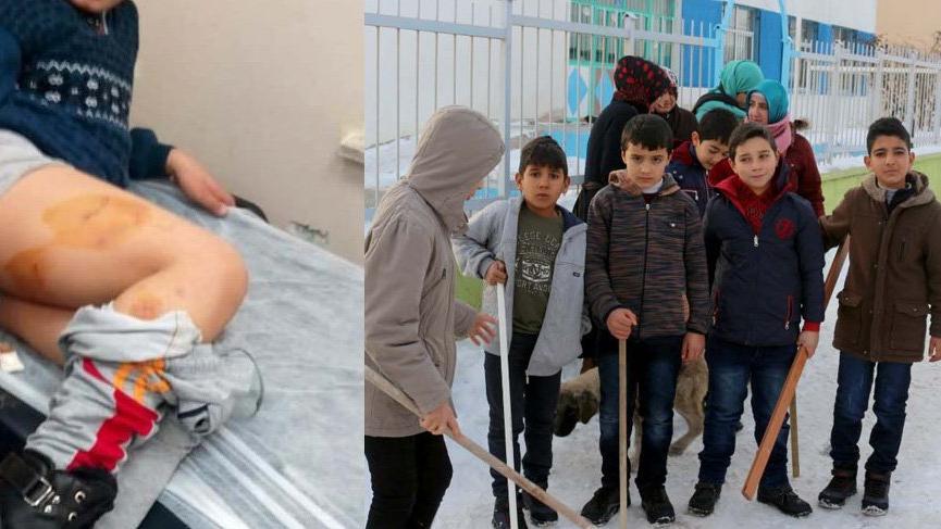 Haymana'da köpeklerin saldırdığı çocuk yaralandı