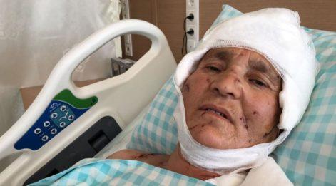Köpeklerin saldırısında ağır yaralanan kadın: Komşum olmasa öldürmüşlerdi